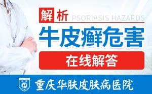 重庆皮肤病医院-常见的牛皮癣症状及病因