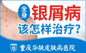 重庆正规的牛皮癣医院在哪